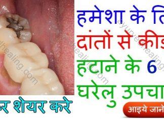 - teeth worm remedies 324x235 - आयुर्वेद हीलिंग