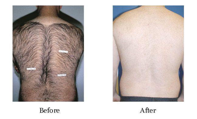 - how to remove back hair naturally - सीने(छाती) और पीठ के अनचाहे बालों को हटाने के घरेलू उपाय
