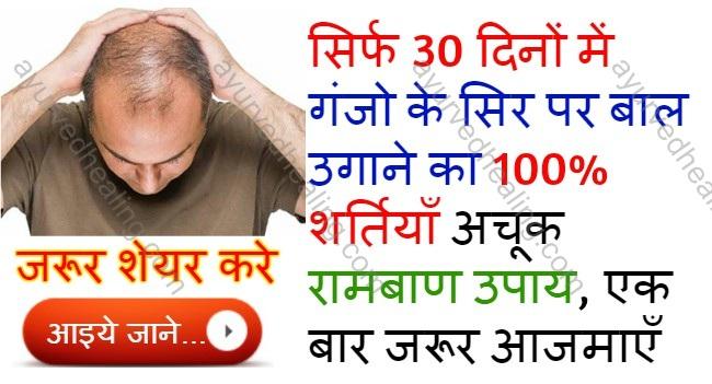 - baldness treatment in ayurveda - सिर्फ 30 दिनों में गंजो के सिर पर बाल उगाने का 100% शर्तियाँ चमत्कारी तेल