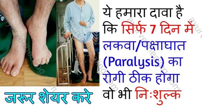 - lakwa ka ilaj - ये हमारा दावा है कि सिर्फ 7 दिन में लकवा/पक्षाघात (Paralysis) सही होगा