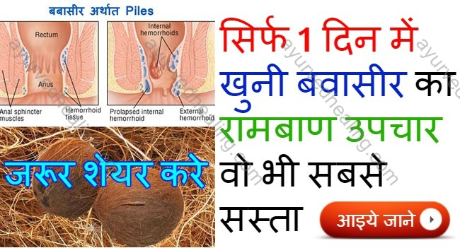 piles-treatment