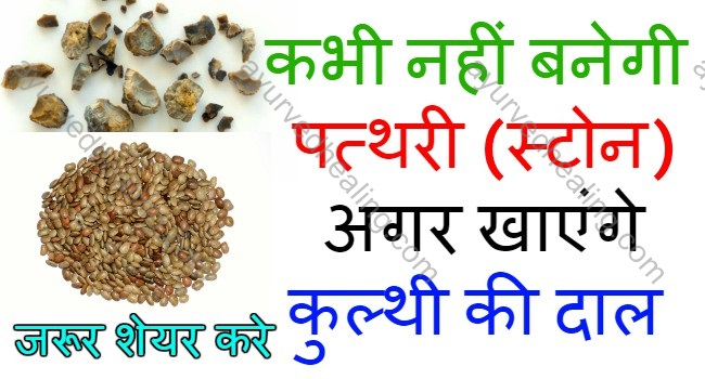 kulthi-dal-benefits-for-stone