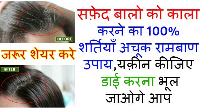 white-hair-problem-solution-in-hindi