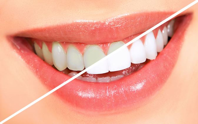 teeth-whitening-remedies