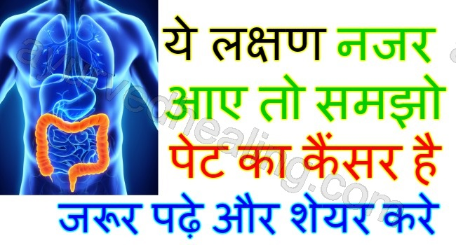 Colon Cancer Symptoms In Hindi À¤†à¤¯ À¤° À¤µ À¤¦ À¤¹ À¤² À¤—