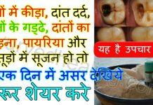 - tooth cavity treatment in hindi 218x150 - आयुर्वेद हीलिंग